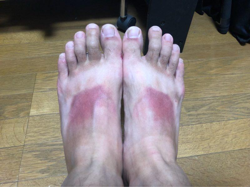 須江の足の画像。足の甲が日焼けしていたい