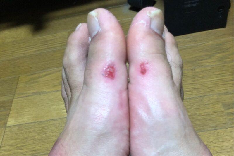 須江の足の画像。親指付け根バンドずれ